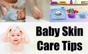 Tips for Baby Skin Care